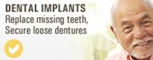 implants_icon